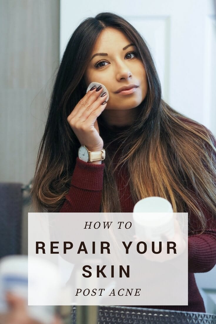 How To Repair Your Skin Post Acne